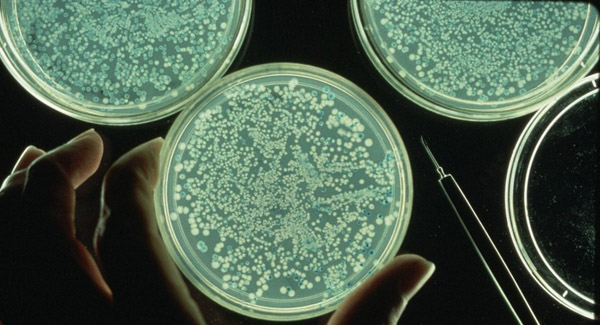 Bacterial growth in petri dishes