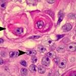 urothelial_carcinoma-high-grade-bladder-4-ub005-4