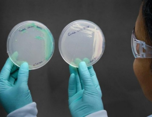 Candida Auris Identified as a New Fungal Superbug and Global Threat