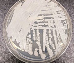 Candida auris – spreading at a surprising rate. Wikimedia Commons/CDC