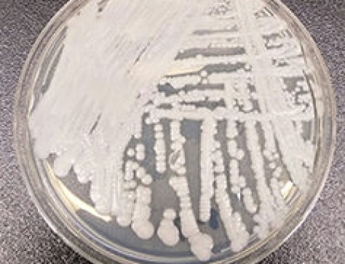 New antimicrobial-resistant fungal disease spreading through UK hospitals