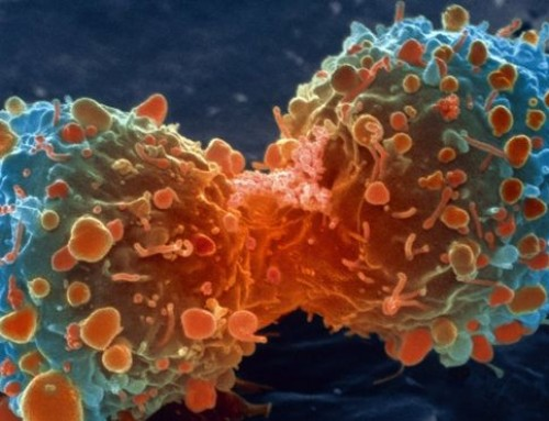 BBC News – 'Handful of changes' make cancer